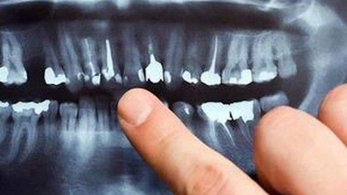 Efek Jangka Panjang Gigi Miring jika Tidak Segera Diatasi