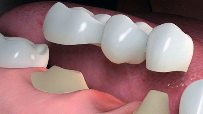 Ilustrasi gigi gingsul yang dicabut, menurut drg. R. Ngt. Anastasia Ririen