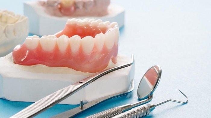 Berapa Lama Gigi Palsu Bisa Digunakan? Begini Penjelasan drg. Muhammad Ikbal, Sp.Pros