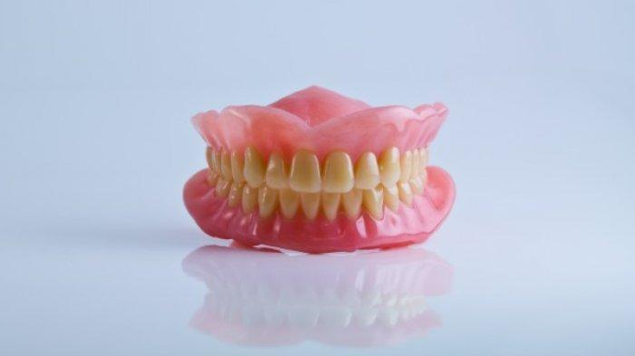 Berapa Lama Ketahanan dari Gigi Tiruan? Berikut Penjelasan drg. Muhammad Ikbal, Sp.Pros