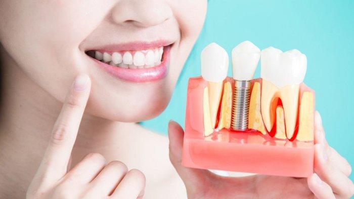 drg. Citra, MMRS Sebut Penggunaan Gigi Palsu Memiliki Banyak Manfaat, Tidak untuk Estetika Saja