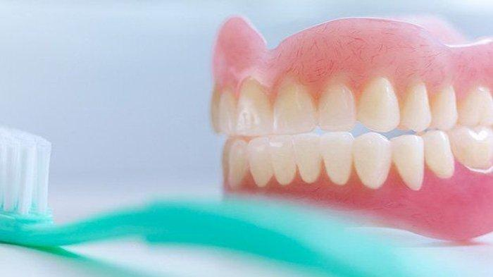Tak Hanya untuk Estetika Saja, Penggunaan Gigi Palsu Lebih Mengutamakan Fungsi