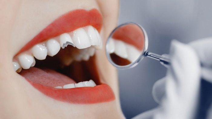 Gigi Palsu Patah Bagian Depan Memerlukan Gigi Baru atau Cukup Ditambal? Berikut Ulasan drg Ikbal