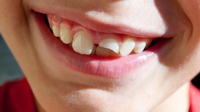 ilustrasi masalah gigi