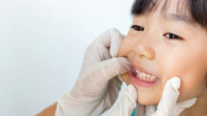 Penyakit Gigi yang Lebih Rentan Diderita oleh Anak-anak Usia Dini