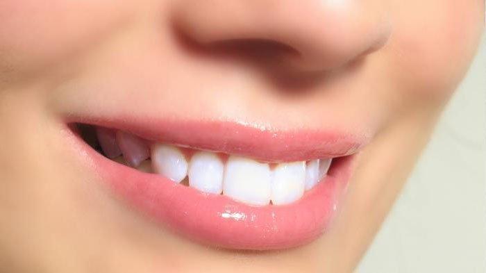Gigi Mati:  Kondisi pada Gigi yang tidak Menimbulkan Rasa Sakit pada Penderitanya.
