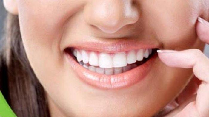 Dokter Bagikan Tips Mempertahankan Gigi Putih Setelah Bleaching