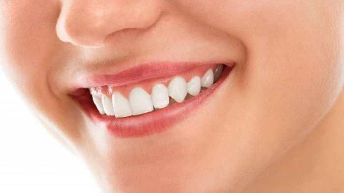 drg. Citra, MMRS Memaparkan Beberapa Perawatan Gigi Agar Gigi Tampil Putih dan Bersih