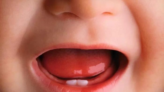 Ilustrasi gigi pada balita