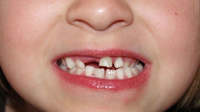 Gigi Susu yang Tidak Terawat Akan Berakibat Terhadap Pertumbuhan dan Perkembangan Anak