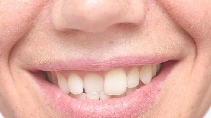 ilustrasi gigi tidak rapi, menurut Dr. drg. Munawir H. Usman, SKG., MAP hal ini dapat memengaruhi bentuk wajah seseorang