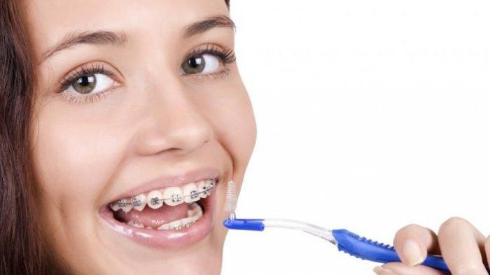 ilustrasi penanganan gigi tidak rata