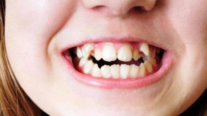 Mengenal Penyebab Gigi Berantakan pada Anak-anak