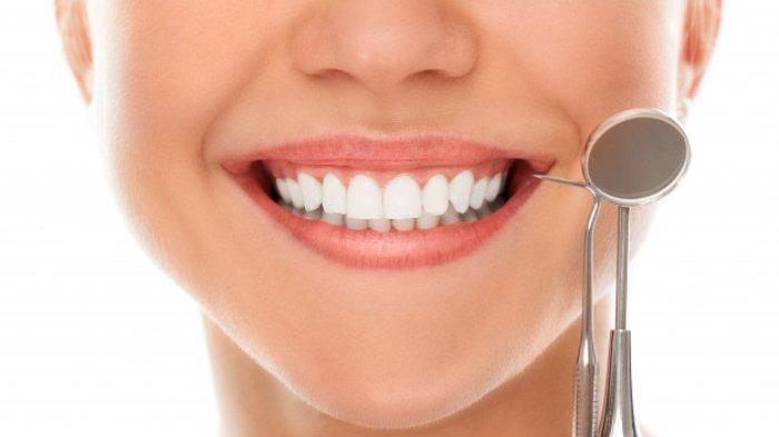 Ilustrasi gigi rapi pada seorang wanita