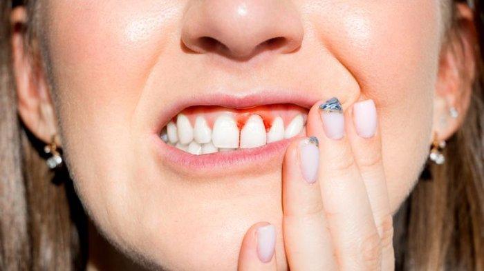 Apakah Penyebab dari Pembengkakan Gusi dan Berdarah saat Menyikat Gigi Dok?