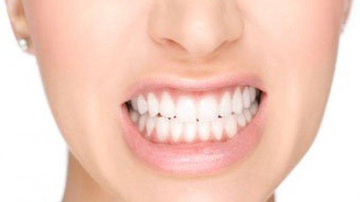 drg. Anastasia Ririen Mengulas Penyebab Terjadinya Radang Gusi, Salah Satunya Akibat Karang Gigi
