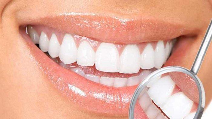 Apakah Perlu Melakukan Bleaching Gigi setelah Lepas Behel? Begini Tanggapan Dokter Gigi