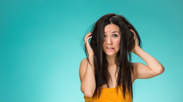 Ilustasi kebersihan yang buruk sebabkan ketombe pada rambut