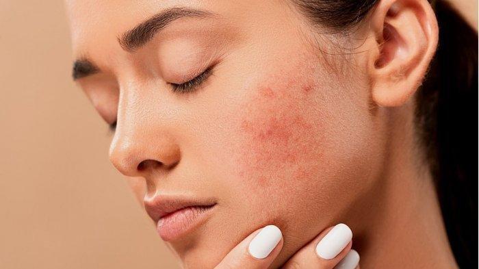 Ilustrasi jerawat pada wajah, dr. Kardiana Purnama Dewi sarankan mencuci wajah sebanyak 2 kali dalam sehari