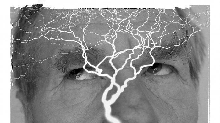 Tak Selalu Kejang, Gejala Epilepsi Bisa Jadi Hanya Bengong, Simak Penjelasan Dokter Berikut Ini