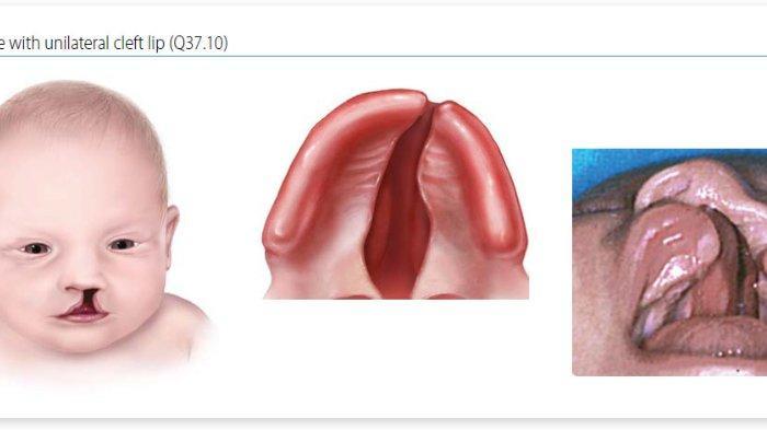 Kenali Ciri-Ciri Kelainan Bibir Sumbing dari Dokter Spesialis Bedah Mulut