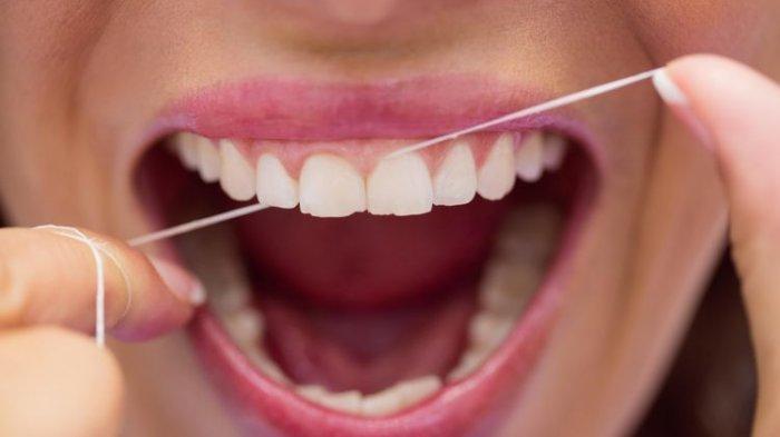 Benarkah Dental Floss Bisa Membersihkan Karang Gigi? Begini Tanggapan Dr. drg. Munawir H. Usman