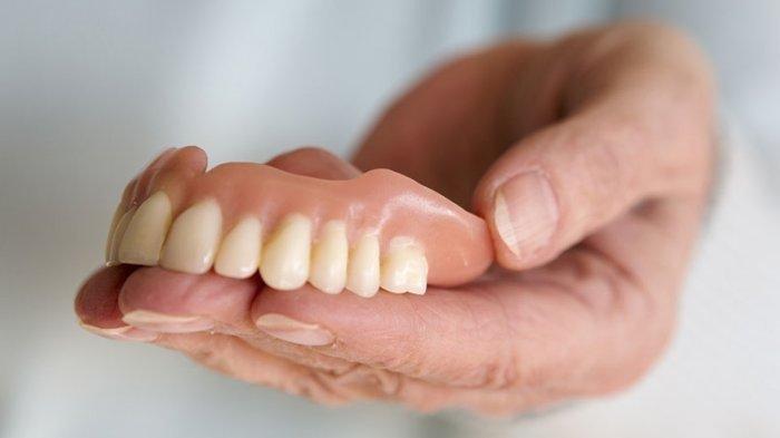 Ilustrasi gigi palsu untuk menggantikan gigi yang rusak
