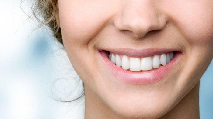 Ilustrasi gigi setelah dirapikan dengan clear aligner