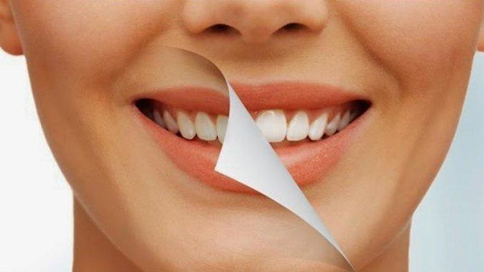 Ilustrasi gigi setelah perawatan bleaching