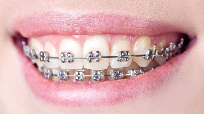 Ilustrasi gigi yang melakukan perawatan menggunakan behel