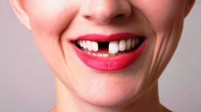Ilustrasi gigi yang ompong