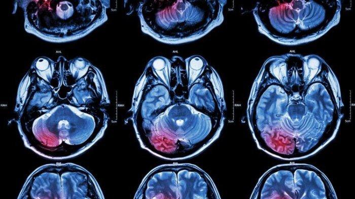 Ilustrasi hasil MRI otak