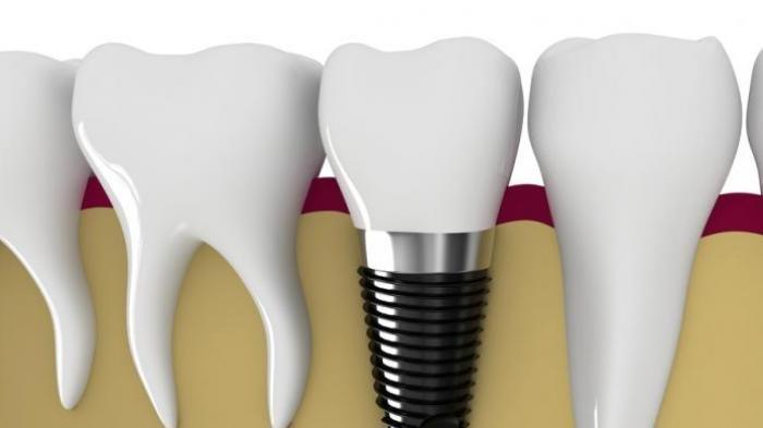 Dok, Pemasangan Gigi Palsu Apakah Aman dan Tidak Mudah Lepas?