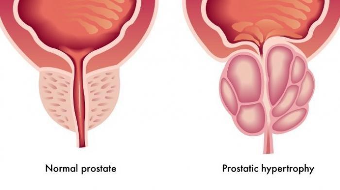 Ilustrasi kanker prostat, pria harus segera menyadari jika terdapat gangguan pada prostat