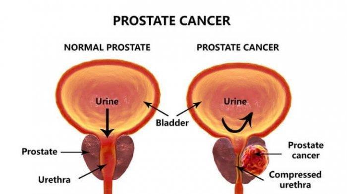 dr. Johannes Aritonang: Gejala Kanker Prostat Hampir Sama Dengan Gejala Pembesaran Prostat Jinak
