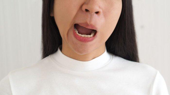 Ilustrasi penderita stroke, drg. R. Ngt. Anastasia Ririen paparkan jika kesehatan rongga mulut yang tidak terjaga dapat memicu kejadian stroke