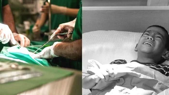 Dok, Apakah Risiko dan Manfaat Khitan atau Sunat Bagi Seorang Pria? Begini Ulasan Dokter