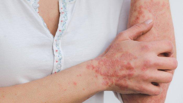 dr. Lusiyanti, M.Med., Sp.KK: Kulit Kering Bisa Disebabkan Iritasi atau Skin Barrier yang Terganggu