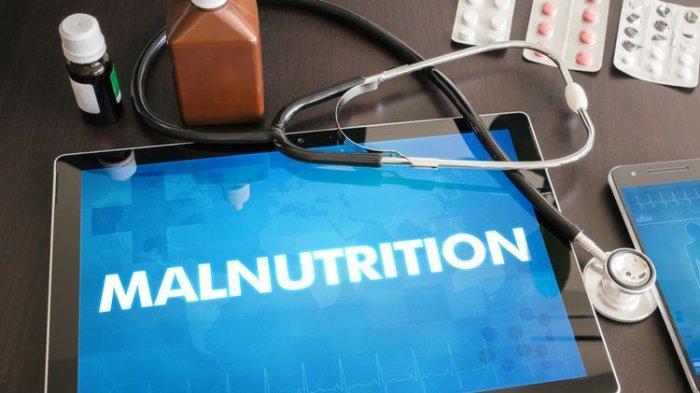 Ilustrasi malnutrisi,