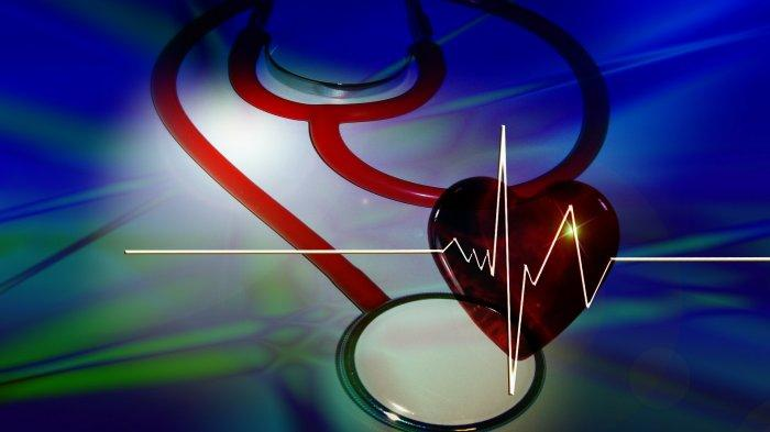 Dokter Jelaskan Mengapa Serangan Jantung Bisa Terjadi saat Olahraga