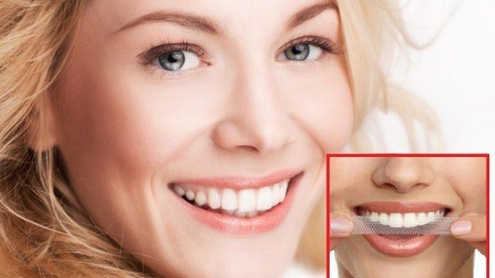 Ilustrasi gigi putih