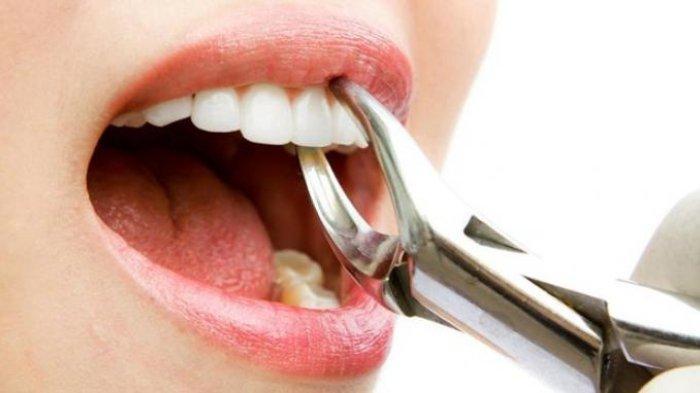 Ilustrasi mencabut gigi.