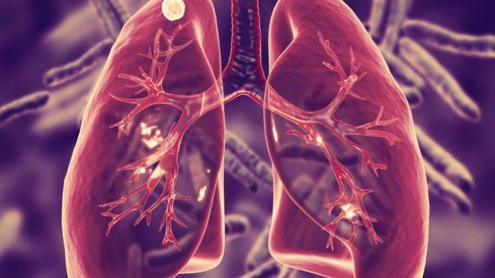 Sisa Metabolisme yang Banyak Mengakibatkan Paru Bekerja Keras, Simak Ulasan R. Radyan Yaminar, S. Gz