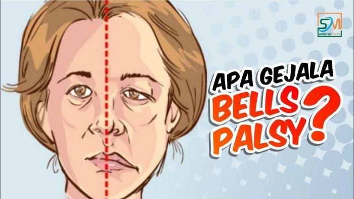 Ilustrasi pasien bells palsy