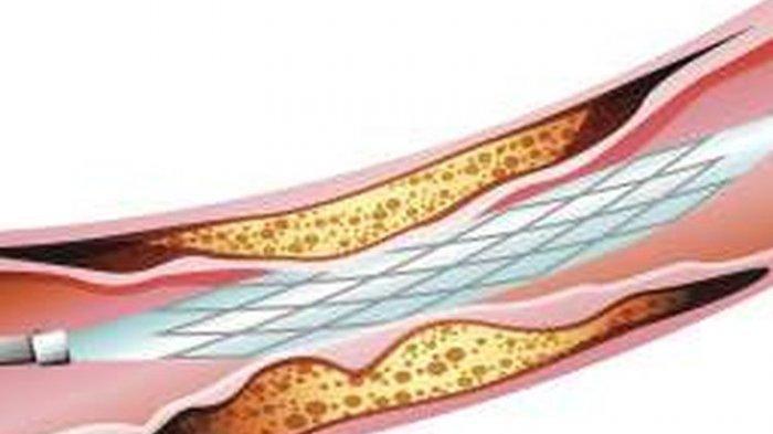 Ilustrasi pemasangan pembuluh darah jantung