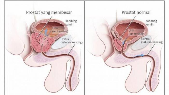dr. Johannes Aritonang Sebutkan Keluhan yang Dapat Terjadi Ketika Mengalami Gangguan Prostat