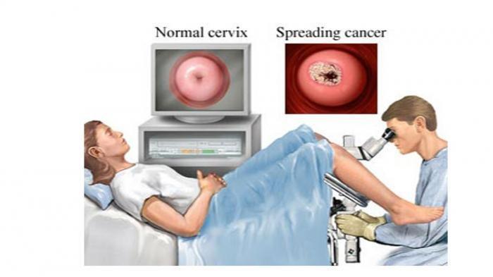 Ilustrasi pemeriksaan kanker serviks, menurut dr. Haidar Zain dan dr. G. Iranita Dyantika R. apabila pasien kanker serviks baru mengetahui saat sedang hamil maka akan dihadapkan oleh 2 pilihan