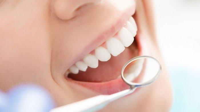 Efek Samping samping Bleaching Gigi yang Perlu Diketahui