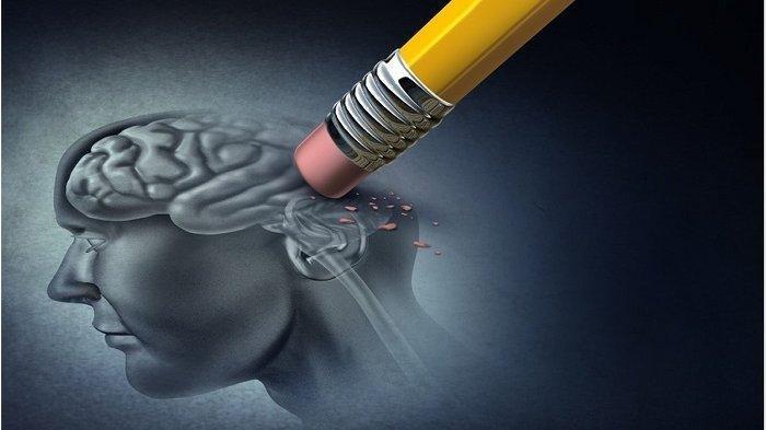 Gaya Hidup Pemicu Penyakit Stroke, Ini Penjelasan Dokter