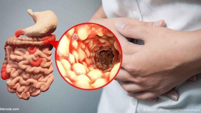 Dokter Tegaskan hanya Makanan yang Bisa Sebabkan Penyakit Usus Buntu, Simak Penjelasan Berikut